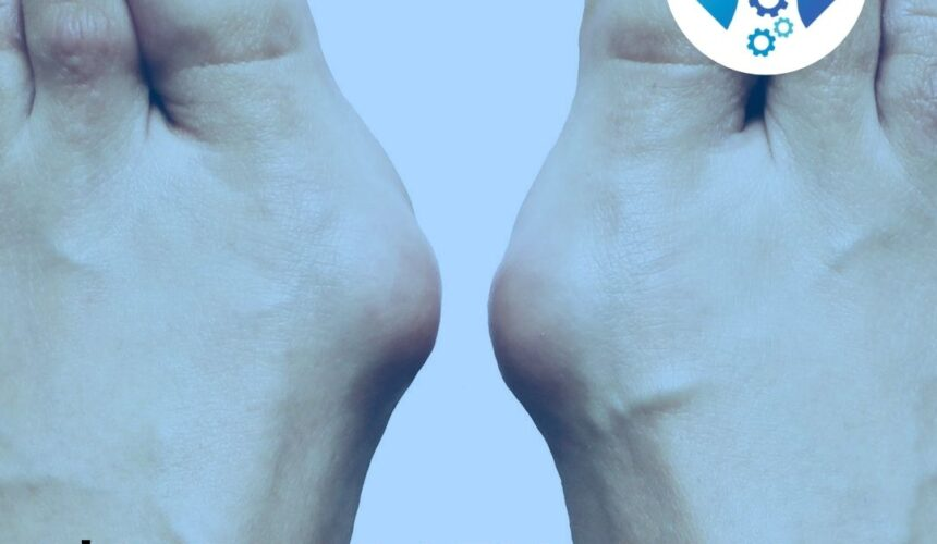 L' Alluce valgo si cura con l'Osteopatia
