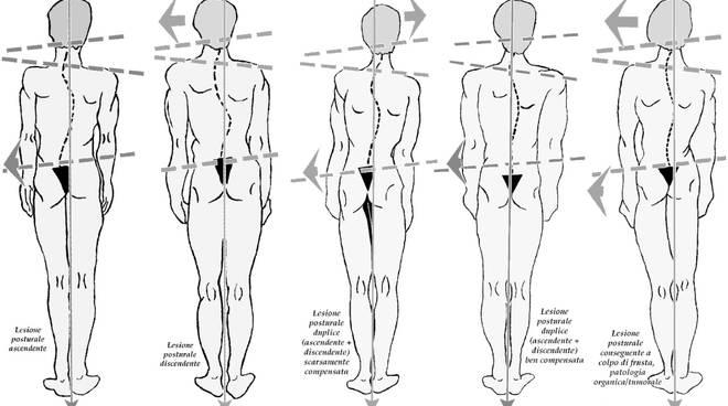 borsite trocanterica postura