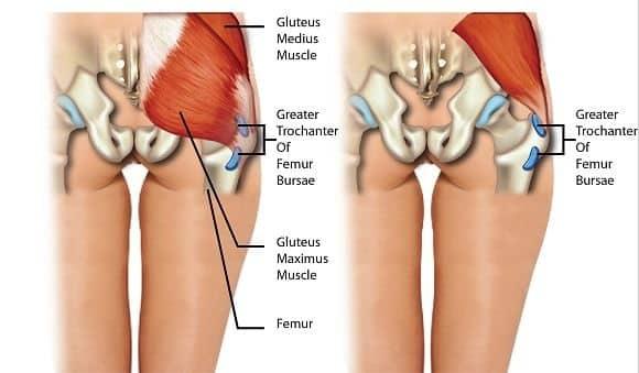 borsite trocanterica muscoli